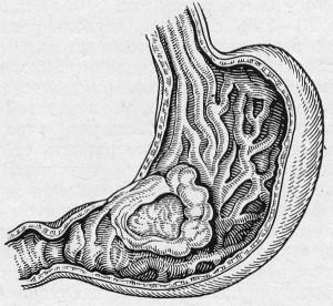a gyomor antrum rákja don papillómák eltávolítása