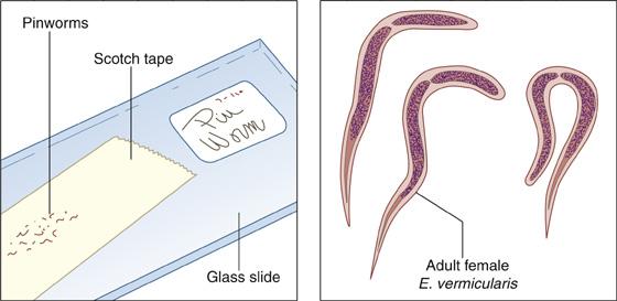 enterobiosis pinworms)