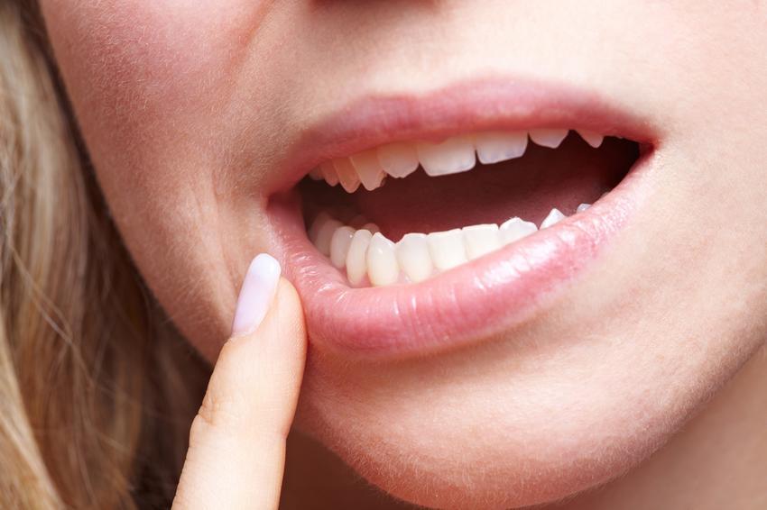 4. szájüregi rák