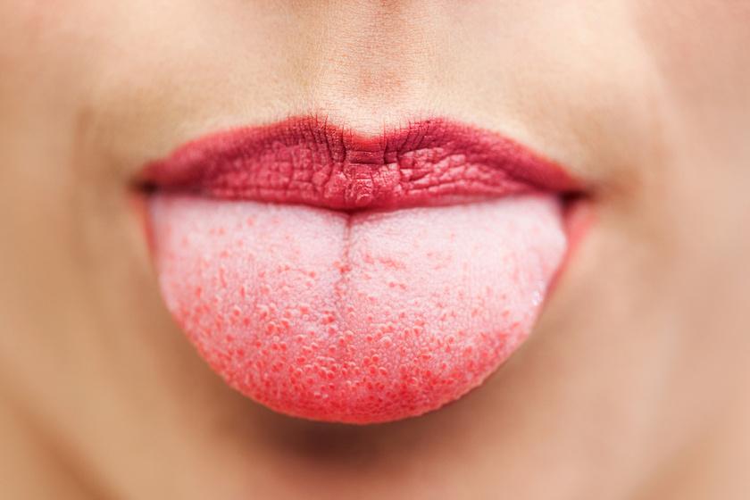 Papilloma a nyelven - tünetek, kezelés, prognózis - Melanóma