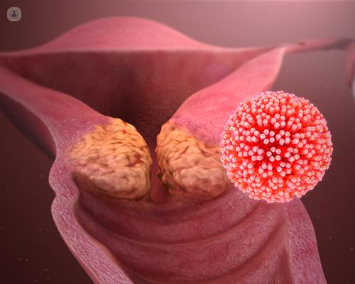 genitális humán papilloma vírus)