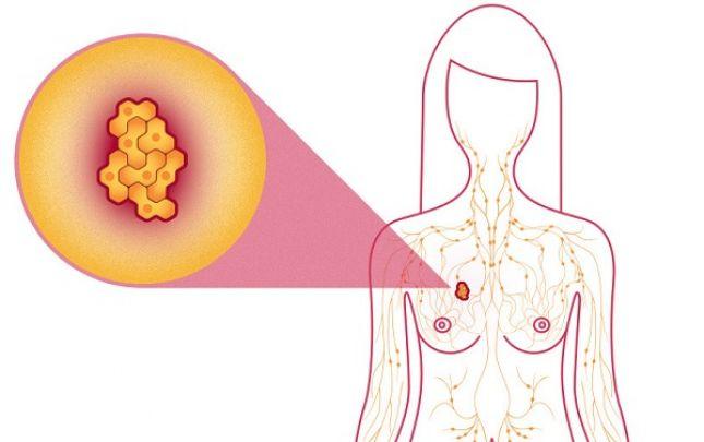 rák jóindulatú daganatok