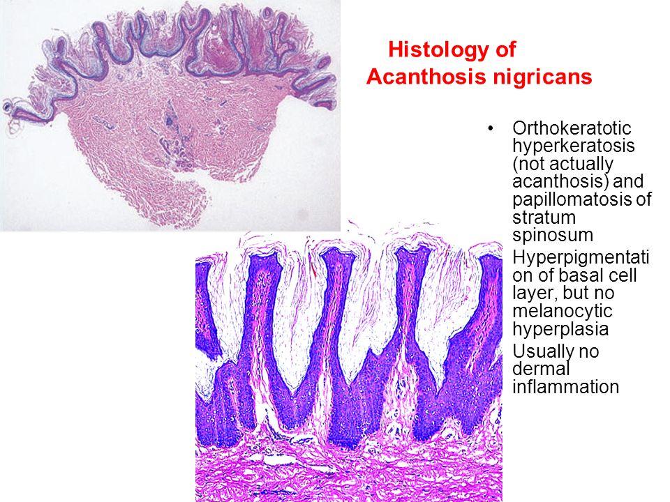 hyperkeratosis papillomatosis)