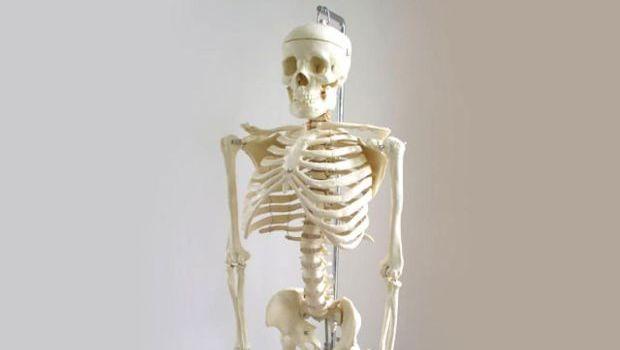szarkóma csontrák)