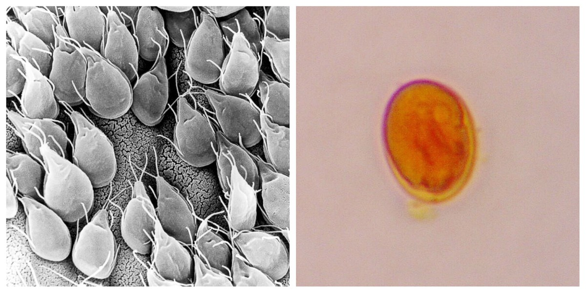 Parazita a vízben. fonal giardia raw garlic