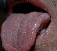 A genitális szemölcsök diagnózisa - Nemi szervi szemölcs