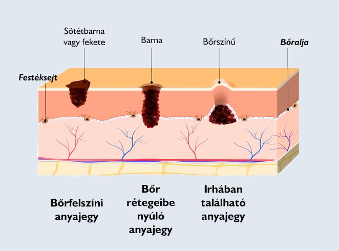 Hogyan lehet maga eltávolítani a papillómát, A paraziták befolyásolják-e a súlyt