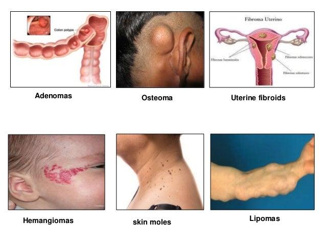 papilloma icd 10 paraziták rák kezelésére