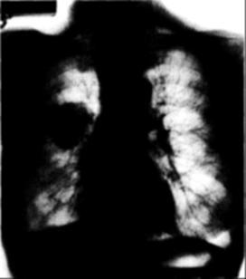 tüdőrák az utolsó szakaszban