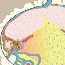 neuroblastoma rák)