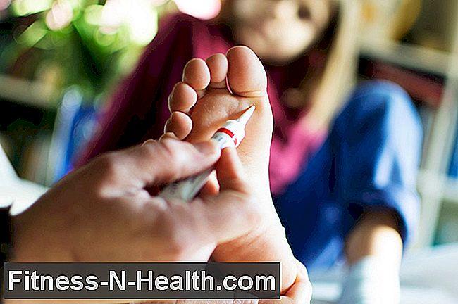 Nyaki condylomas: tünetek, okok, kezelés