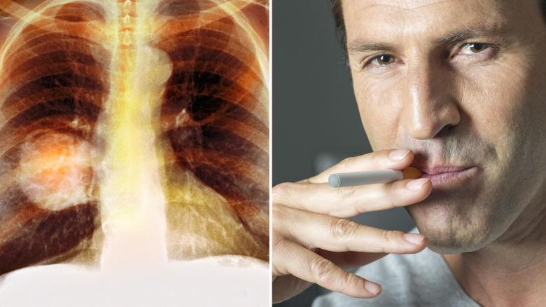 Oltóanyag tüdőrák kezelésére