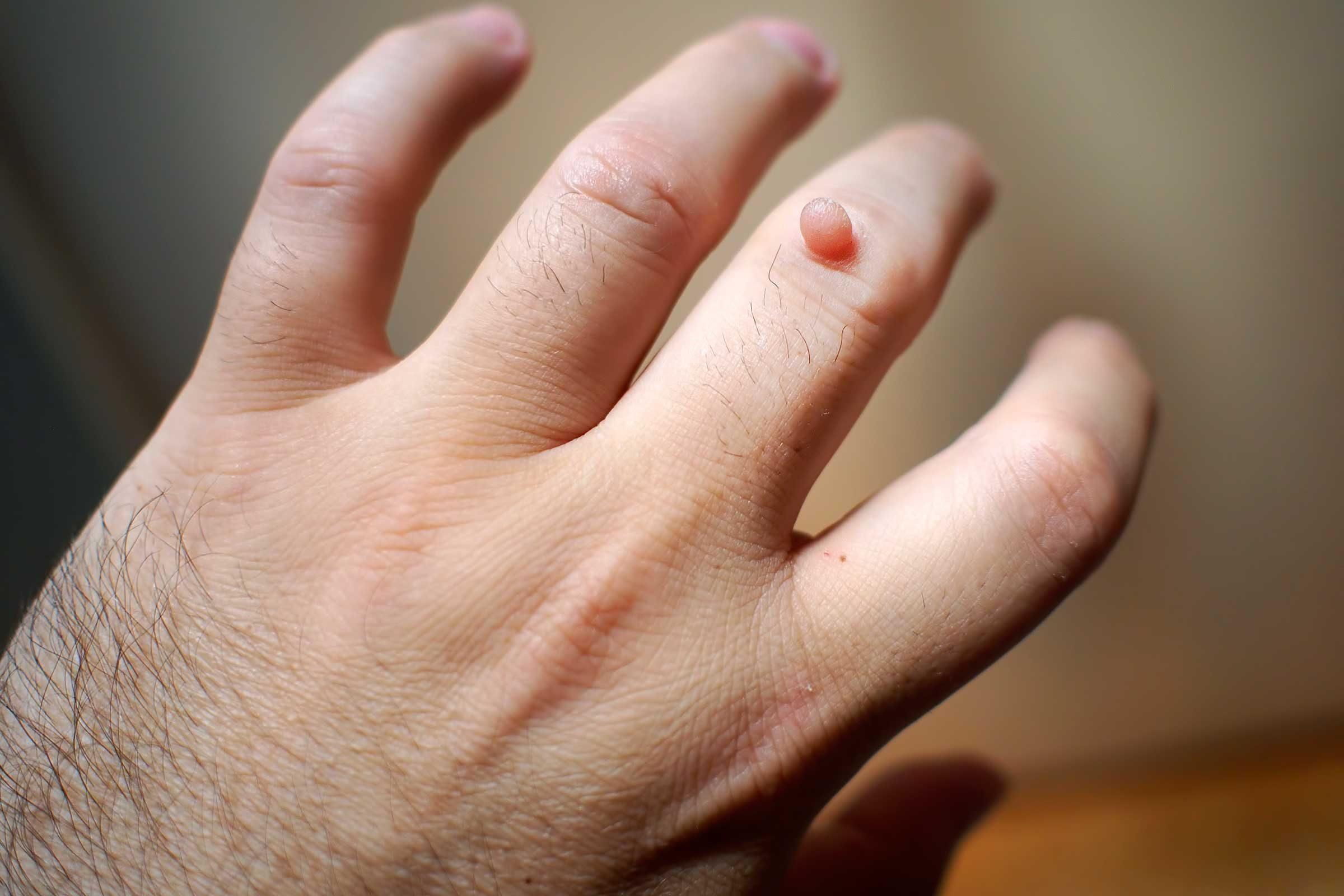 Intraduktális papilloma - Lipoma