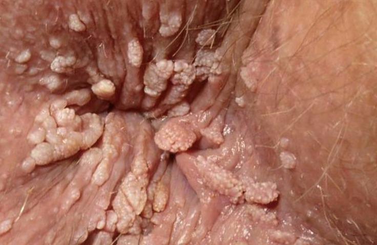 Györgytea HPV - Györgytea