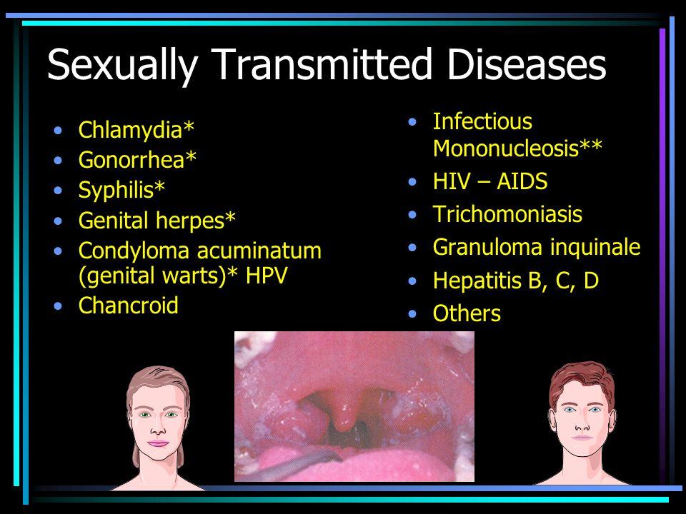 Trichomoniázis