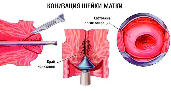 papillomavírus kezelés konizációja)