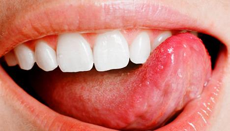 dohánytól származó szájüregi rák emberi papilloma vírus diagnózisa