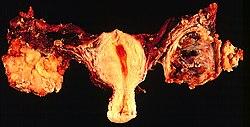 laphámsejtes karcinóma)