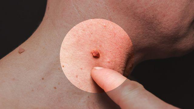 papillomavírus férfi nő humán papilloma vírus esetek az USA-ban