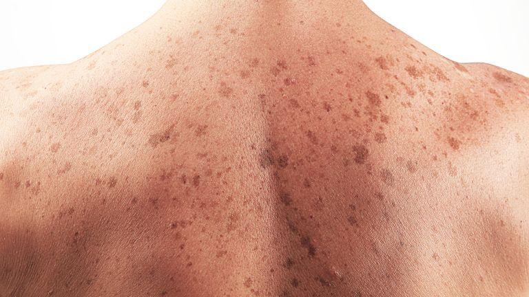 a bőrrák veszélyes szemölcs vírus az ujjakon