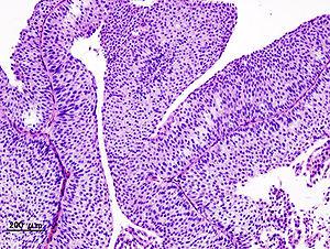 vizelet papilloma hasnyálmirigyrák röntgen