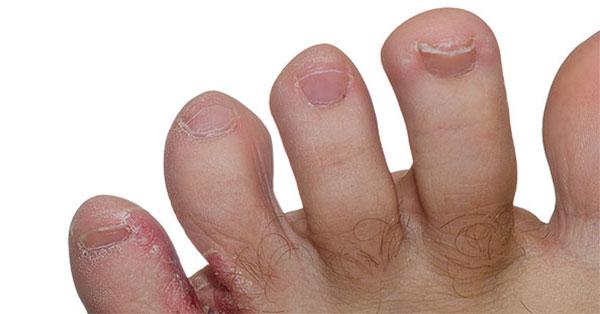 égés a lábujjak között és a kezelés)