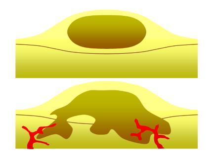 szemölcsök a bőr kezelésén miben különböznek a szemölcsök a papillómáktól
