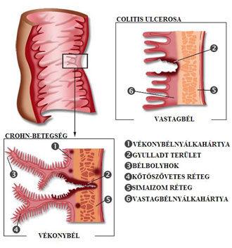 a crohn-kór férgekkel történő kezelése ez a nemi szemölcsök