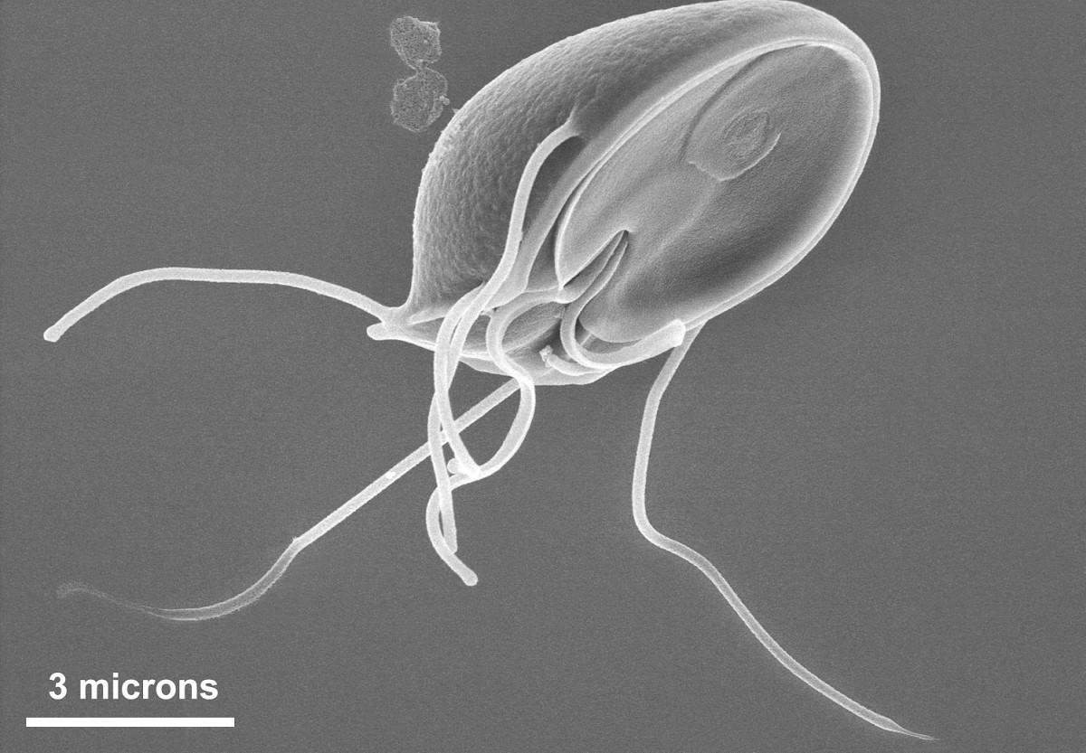 A kútvízben lévő szennyezőanyagok Paraziták kútvízben