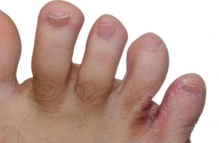 Lökéshullám-terápia: egy új és hatékony lehetőség a cukorbeteg láb kezelésében — Istenhegyi Klinika