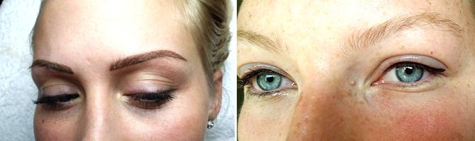 Túlélni a szemhéj növekedése miatt: típusok, okok, kezelés - Chicken pox