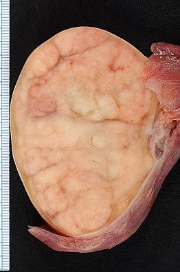 agresszív szarkóma rák mit jelent a méregtelenítő étrend