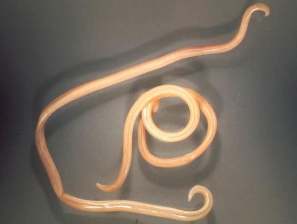 parazita betegség kezelése papillómák a nyaki kezelési fórumon