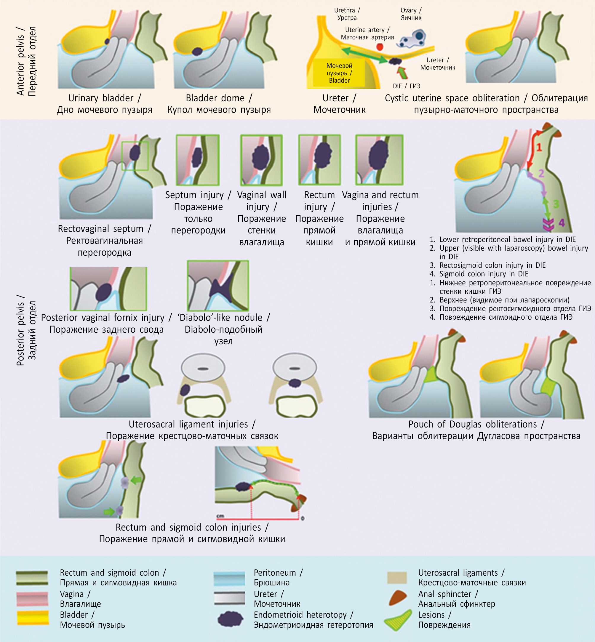 az endometrium bélésének rákja)