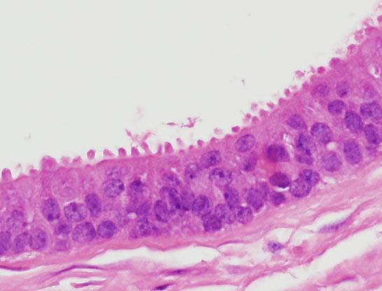 hpv impfung jungen rki rák genetikai előnyei