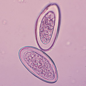enterobius vermicularis a függelékben)