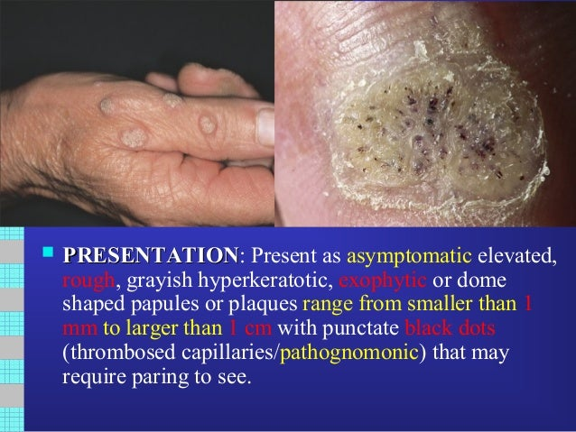 humán papillomavírus verruca vulgaris)