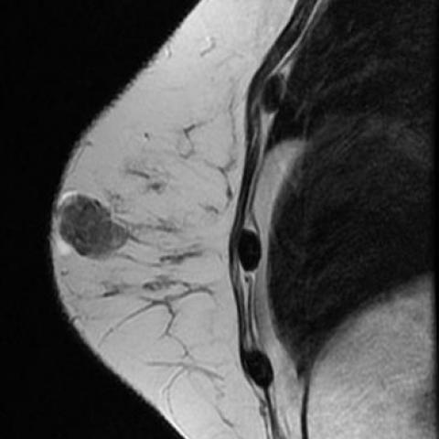 bilaterális intraductalis papilloma)