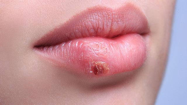 hpv vs herpesz tünetek)