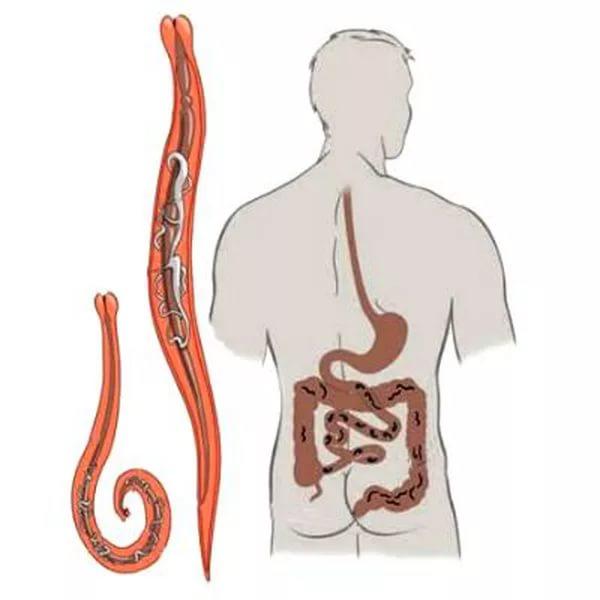Paraziták epeúti tünetek esetén - gyermekek helminthiasis készítményei Féregmarhák kezelése