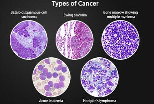 szarkóma rákos példák