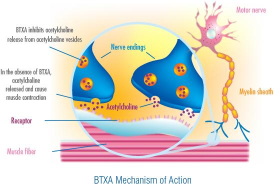 Botulizmus tünetei és kezelése