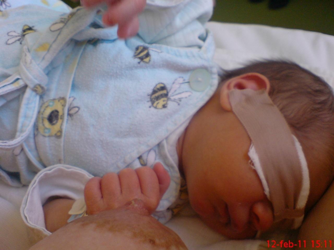 csíp szoptatáskor