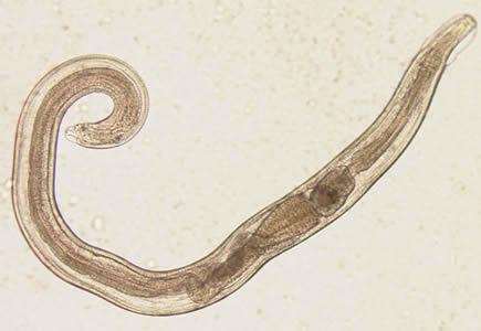 enterobius vermicularis élőhely