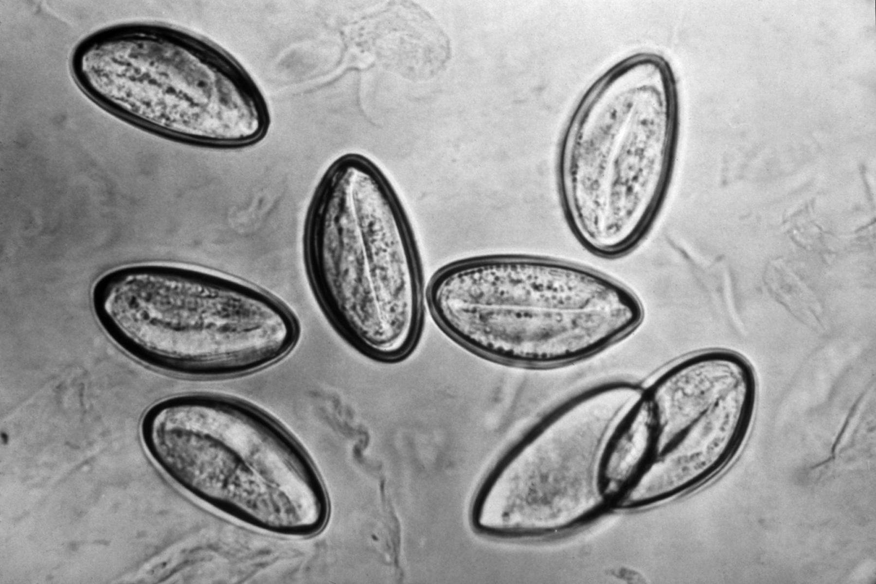 enterobius vermicularis szerkezete)