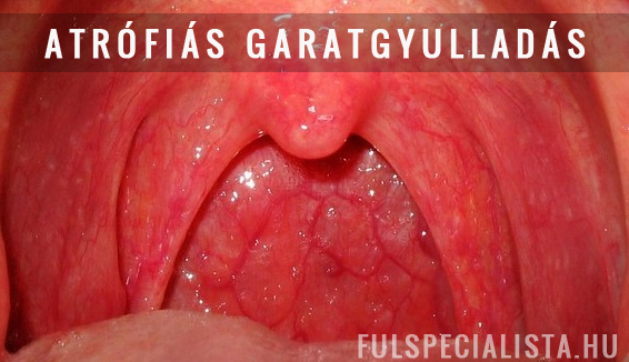 Streptococcusos garatgyulladás