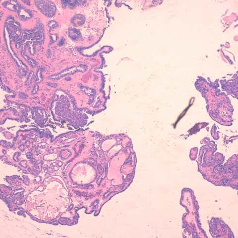 intracisztás intraductalis papilloma