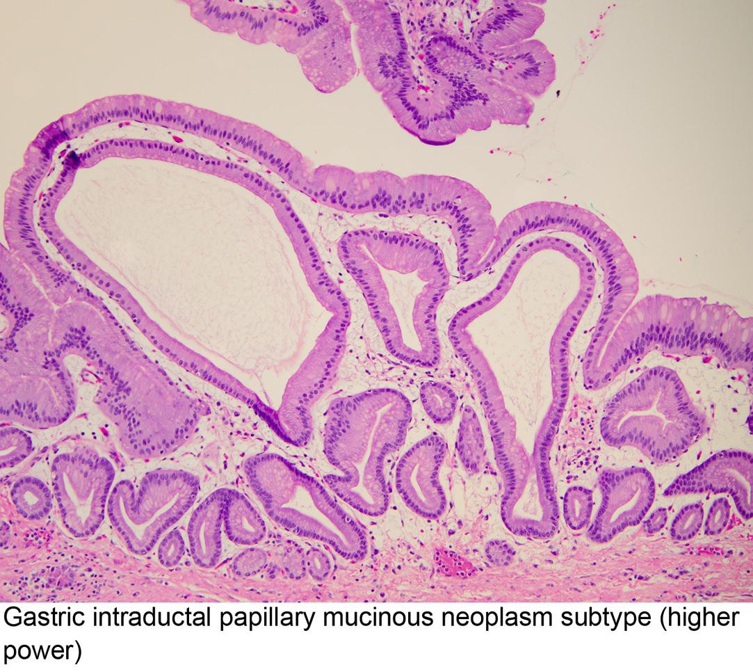 epeúti papillomatosis intraductalis papilláris mucinous neoplazma