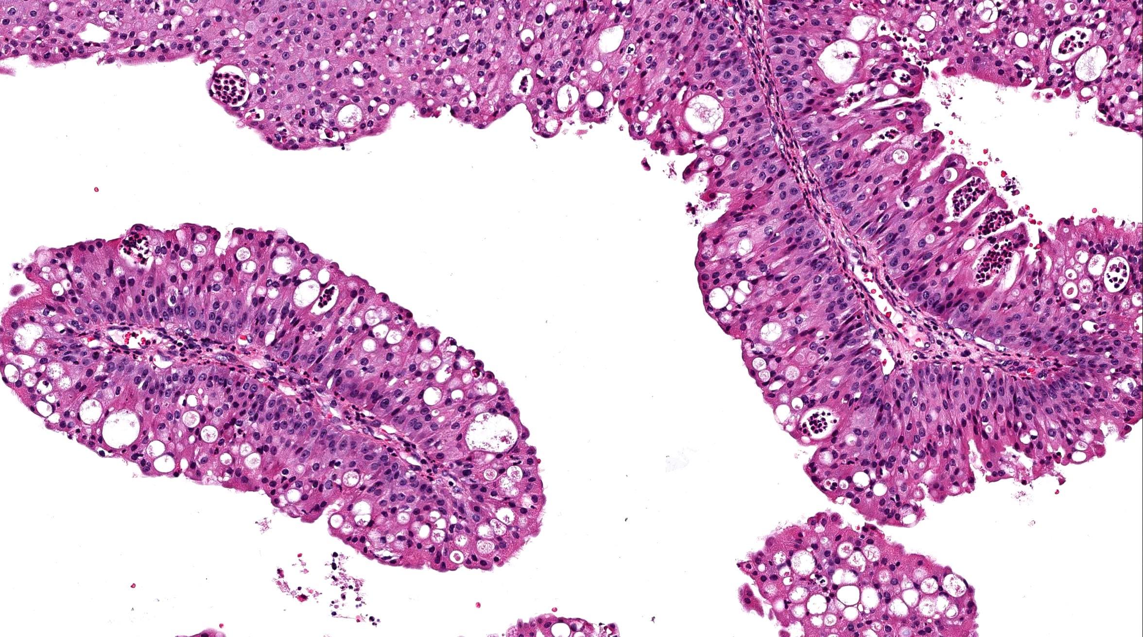 fordított papilloma frontális sinus