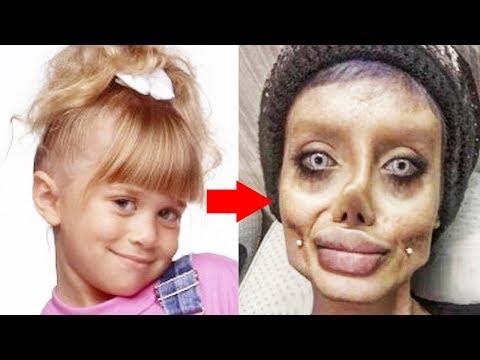 gyógyítja az arcparazitákat)